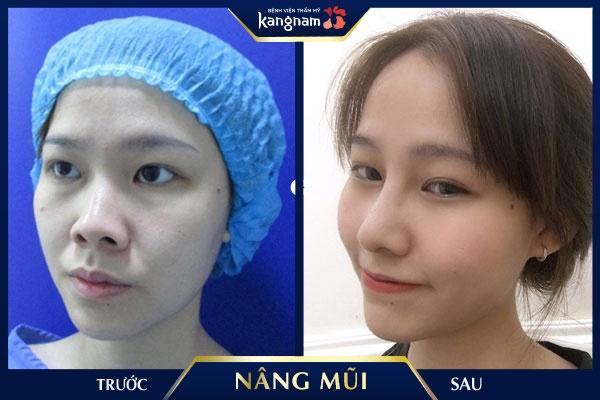 nâng mũi bị kéo mắt phải làm sao kangnam