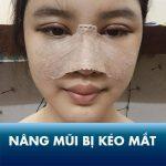 [Thực hư] Nâng mũi có bị kéo mắt không? Giải đáp từ bác sĩ chuyên khoa