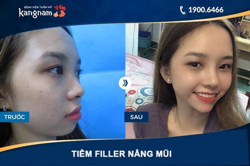 nâng mũi không phẫu thuật giữ được bao lâu