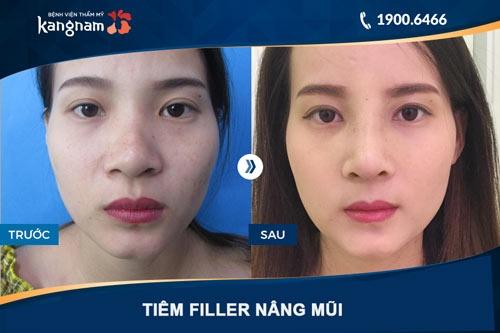 nâng mũi không phẫu thuật kangnam