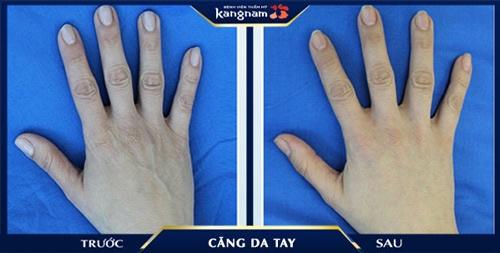 phẫu thuật căng da tay