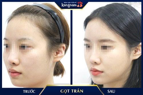 phẫu thuật gọt trán kangnam