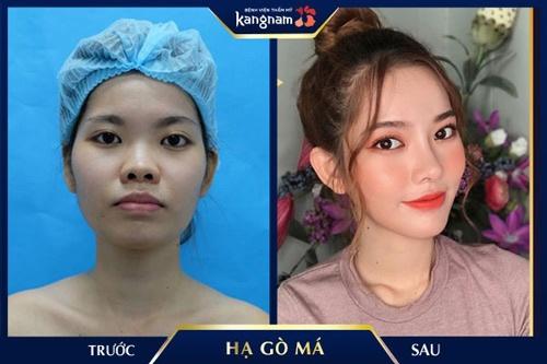 phẫu thuật hạ gò má tại kangnam có đẹp không