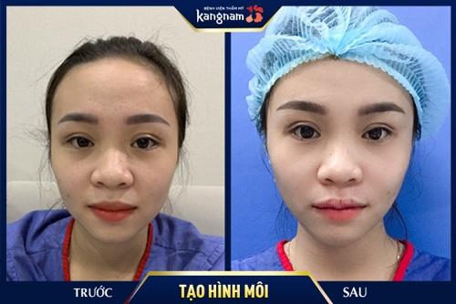 phẫu thuật môi có đau không