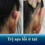 Nguyên nhân và cách chữa sẹo lồi ở tai dứt điểm, không tái phát