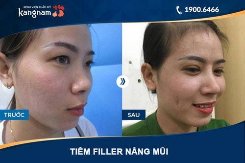 phương pháp nâng mũi không cần phẫu thuật