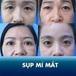 Sụp mí mắt: Nguyên nhân và cách khắc phục triệt để chỉ sau 45 phút