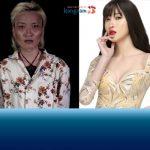 5 ca thẩm mỹ khó thực hiện tại Kangnam