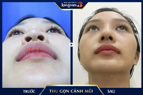 thu gọn cánh mũi kangnam
