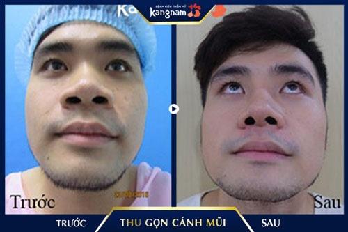 thu gọn cánh mũi tại bệnh viện kangnam