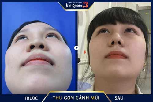 thu gọn cánh mũi tại kangnam