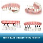 Trồng răng implant có đau không? Những lưu ý giúp giảm đau nhanh nhất
