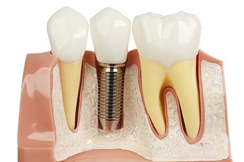 biến chứng của trồng răng implant