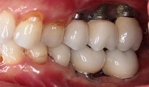 biến chứng trồng răng