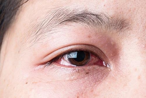 mẹo chữa sụp mí mắt tự nhiên