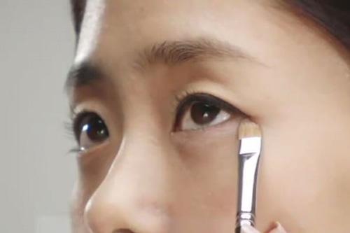 cách chữa mí mắt bị sụp
