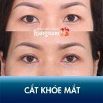 """40 phút mở góc mắt tại Kangnam – """"Xóa sổ"""" mắt nhỏ hẹp thiếu cân đối"""