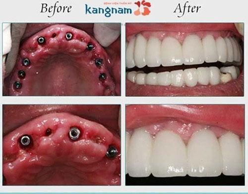 trồng lại răng mất bao lâu