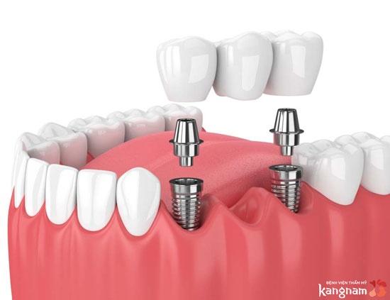 trồng răng implant 5s