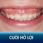 Tướng số cười hở lợi sướng hay khổ? Cách chữa cười hở lợi hiệu quả đổi vận