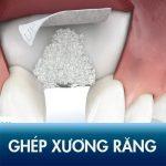 Kiến thức phải biết trước khi ghép xương răng: kĩ thuật, quy trình, chi phí?