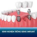 Review chi tiết kinh nghiệm trồng răng Implant an toàn, răng đẹp tự nhiên