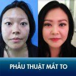 Phẫu thuật mắt to Kangnam – 60 phút mắt to tròn tự nhiên