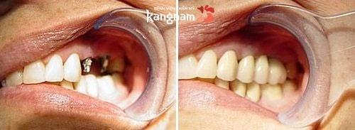 nhổ răng bao lâu thì trồng răng