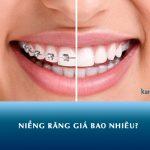 Niềng răng giá bao nhiêu? Cách nhận chi phí niềng răng rẻ nhất tại Kangnam