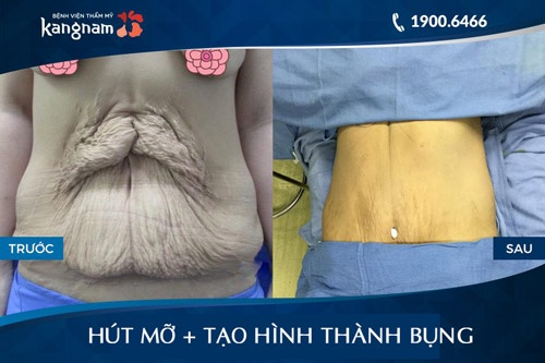 phẫu thuật cắt da thừa ở bụng