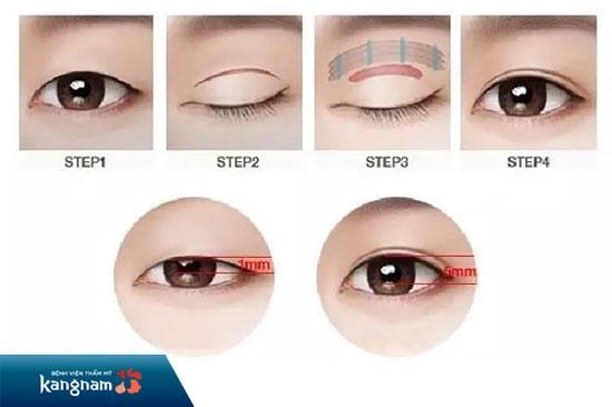 phẫu thuật làm mắt to hơn