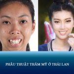 Review thực tế phẫu thuật thẩm mỹ ở Thái Lan Nên hay Không?