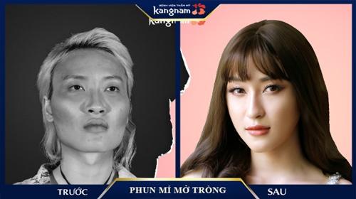 phun mí mở tròng mắt nai Bệnh viện thẩm mỹ Kangnam
