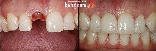 trồng răng hàm mất bao lâu