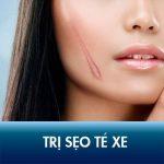 Cách trị sẹo té xe tốt nhất – Sẹo thâm đỏ sau tai nạn sạch 95%