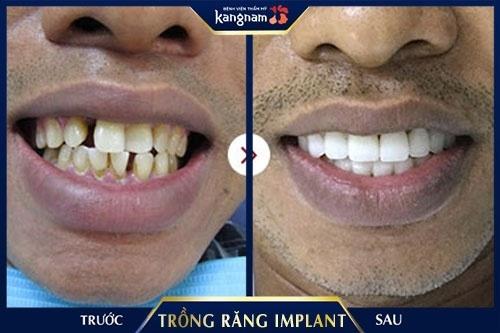 trồng răng sứ mất bao lâu thời gian