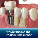 Trồng răng Implant có nguy hiểm không? Ảnh hưởng về sau thế nào