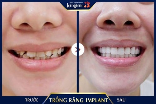 trồng răng implant kangnam