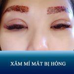 Xăm mí mắt bị hỏng – Nguyên nhân và biểu hiện không thể CHỦ QUAN