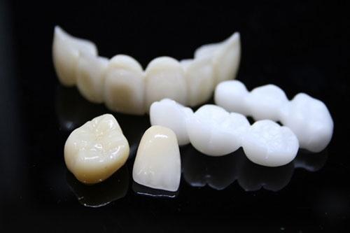 bảng màu răng sứ