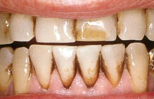 răng bị đen ở chân răng