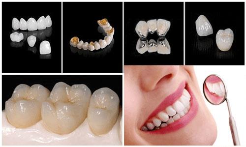 các loại răng sứ hiện nay
