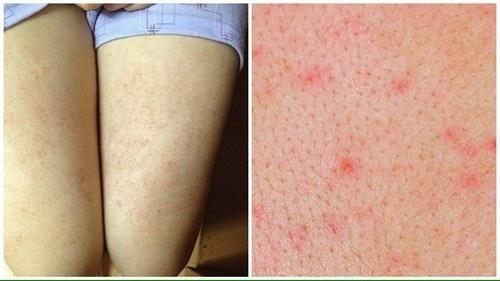cách chữa viêm chân lông