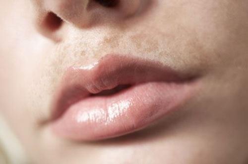 cách trị thâm khóe môi