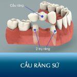 Cầu răng sứ 5S Kangnam – Giải pháp phục hình răng nhanh gọn, không sưng đau