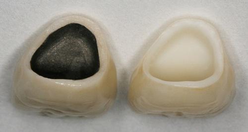 chân nướu răng bị đen