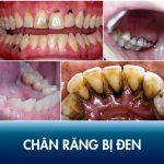 Chân răng bị đen thì phải làm sao? Nguyên nhân và cách điều trị dứt điểm