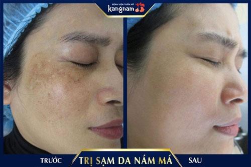 da mặt bị sạm nắng