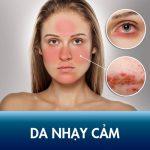 Cẩm nang về da nhạy cảm – Dấu hiệu nhận biết, nguyên nhân và cách chăm sóc