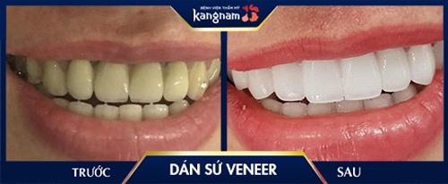 dán veneer răng